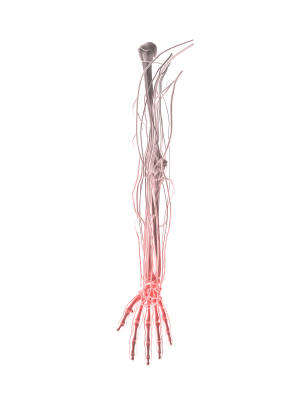 pinched nerve of arm