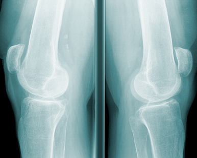 x-ray of knees