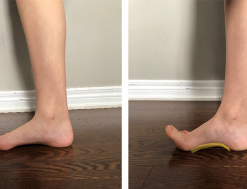 The Benefits of Foot Doming Exercise