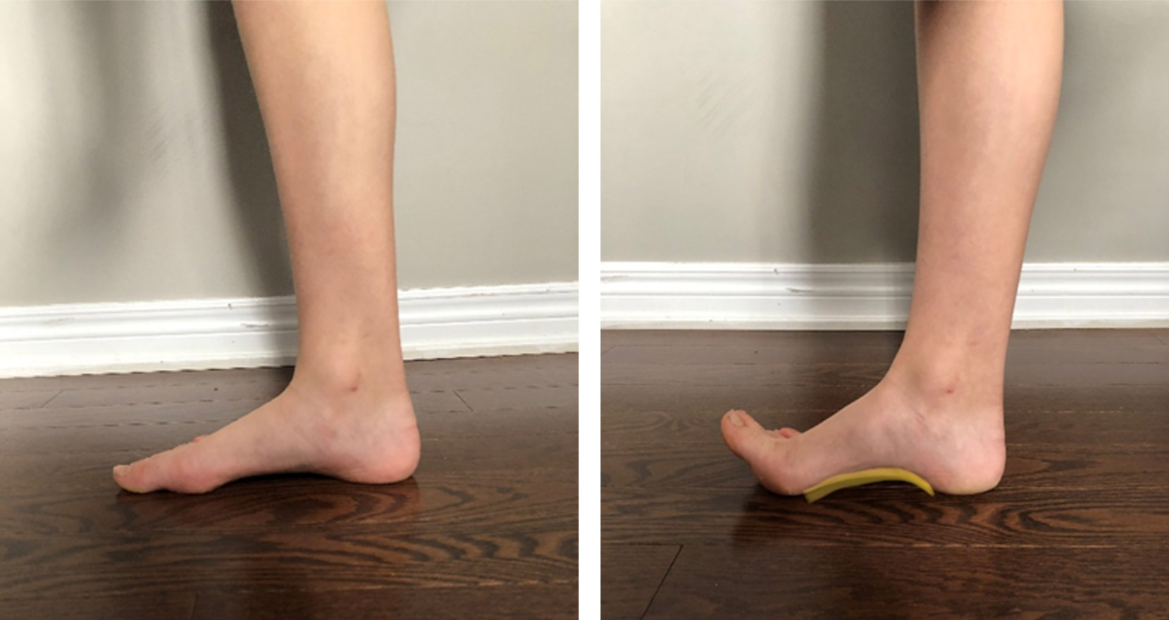 foot doming test