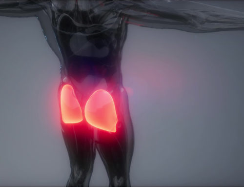 What is Deep Gluteal Syndrome?